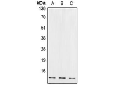 Anti-Cystatin B Antibody