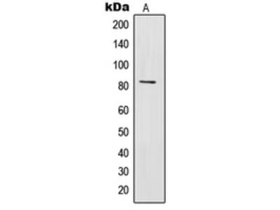 Anti-IL-31RA Antibody