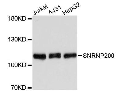 SNRNP200 Polyclonal Antibody