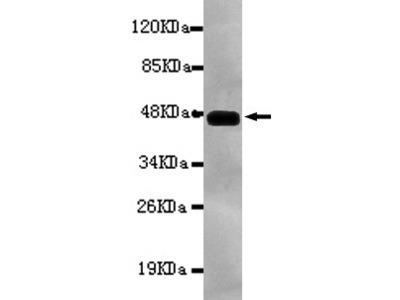 PRKCB Antibody