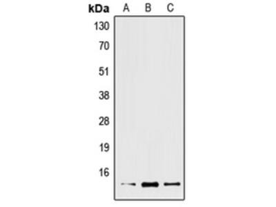 Anti-XCL2 Antibody