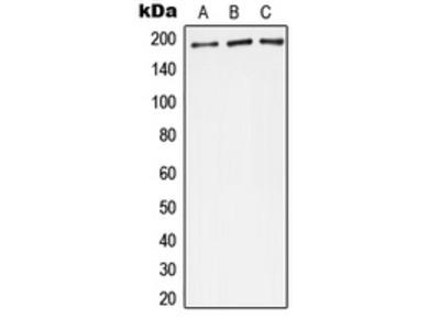Anti-Complement C4A/B Antibody