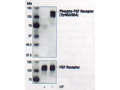 Fibroblast Growth Factor Receptor, phosphorylated, Tyr653/654 (FGFR)