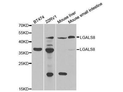 LGALS8 Polyclonal Antibody