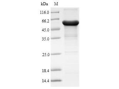 Recombinant Human Arylacetamide deacetylase (AADAC)