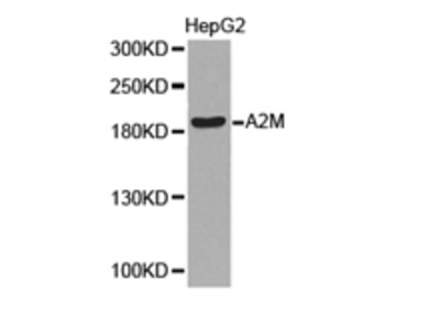 A2M Antibody