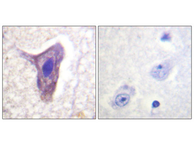 CD88/C5aR (Phospho-Ser338) Antibody