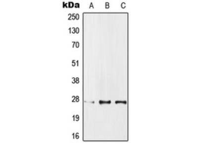 Anti-IPP1 Antibody