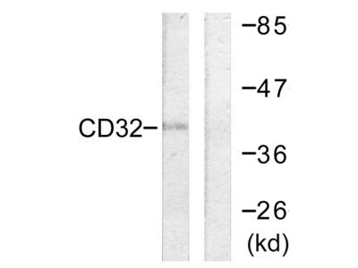 CD32 (Ab-292) Antibody