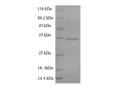 Recombinant Human S-phase kinase-associated protein 1 (SKP1)