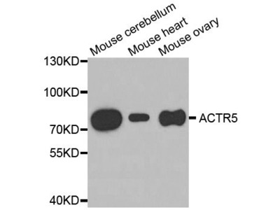 ACTR5 Polyclonal Antibody