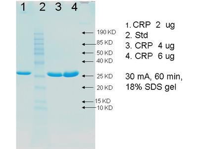 Human C-Reactive Protein (CRP)