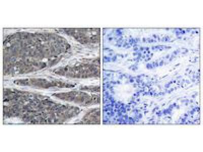 NFKB p105 antibody