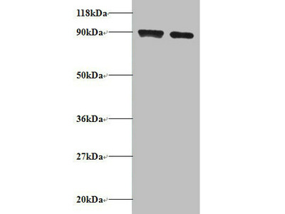Rabbit anti-human Diamine acetyltransferase 1 polyclonal Antibody