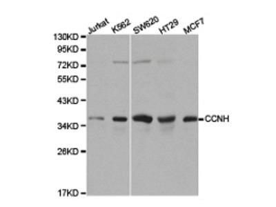 CCNH Antibody
