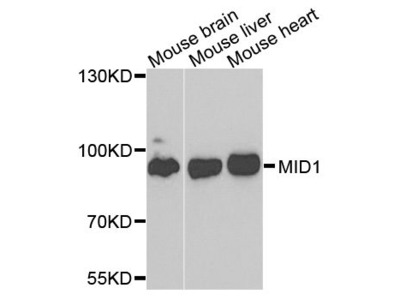 MID1 Polyclonal Antibody