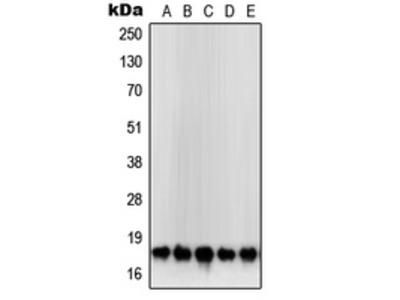Anti-SOD1 Antibody