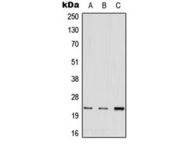 Anti-MED22 Antibody