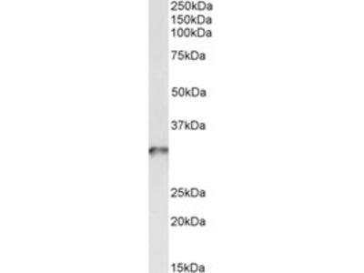 Goat anti-tropomyosin 4 / TPM4 Antibody