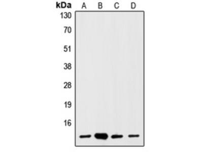 Anti-S100-A1 Antibody