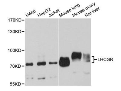 LHCGR Polyclonal antibody