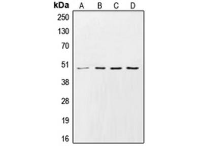 Anti-CK1 gamma 2 Antibody