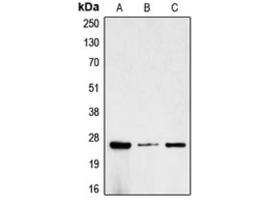 Anti-CG beta Antibody