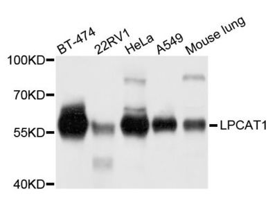 LPCAT1 Polyclonal Antibody