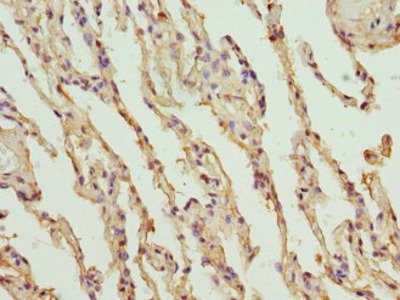 Rabbit anti-human Endothelial protein C receptor polyclonal Antibody;