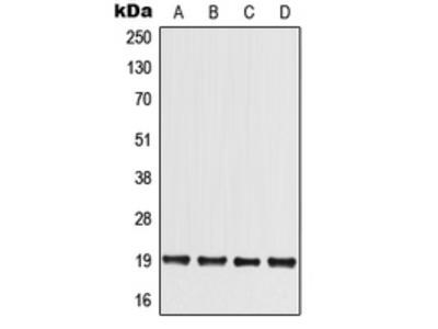 Anti-MED30 Antibody