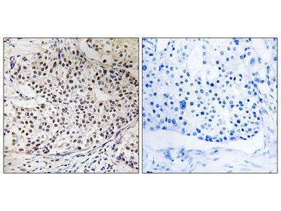 RAD51 (Phospho-Thr309) Antibody