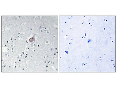 Abl (Phospho-Tyr393/412) Antibody