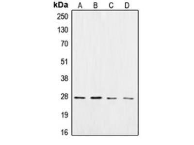 Anti-CK2 beta Antibody