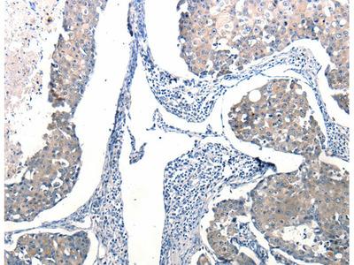 Ccl6 Polyclonal Antibody