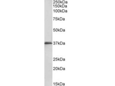 Goat anti-MSI2 / musashi-2 (aa33-43) Antibody