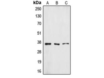 Anti-ZFP36L1 Antibody