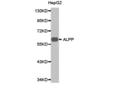 ALPP Antibody