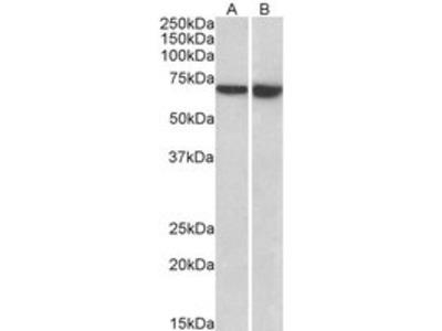 Goat anti-LCP1 / plastin-2 (aa277-291) Antibody