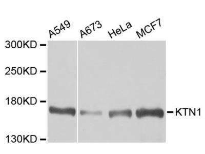 KTN1 Polyclonal Antibody