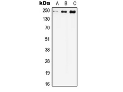 Anti-Cav1.2 Antibody