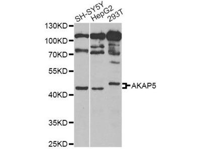 AKAP5 Polyclonal Antibody