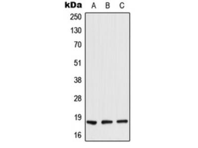 Anti-TIG2 Antibody