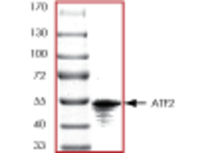 ATF2 recombinant protein