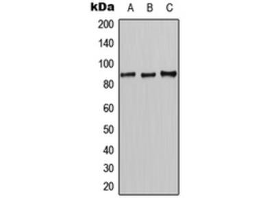 Anti-CLCN7 Antibody