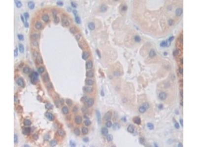 Interleukin 1 Receptor Associated Kinase 3 (IRAK3) Antibody