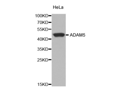 ADAM Metallopeptidase Domain 5, Pseudogene (ADAM5) Antibody