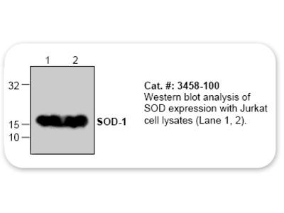 Superoxide Dismutase (SOD-1) Antibody