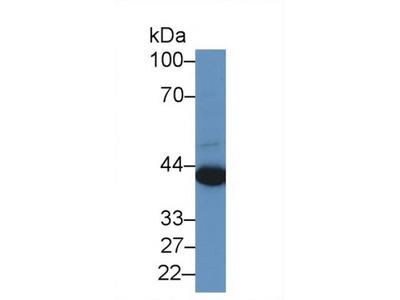 Preferentially Expressed Antigen In Melanoma (PRAME) Antibody