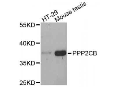 Protein Phosphatase 2 Catalytic Subunit Beta (PPP2CB) Antibody