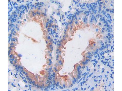 Thyroid Stimulating Hormone Beta (TSHb) Antibody